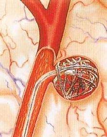 颅内动脉瘤