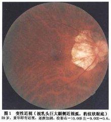 高度近视 隐形眼镜_病理性近视_360百科