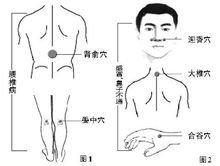 中医针灸经络视频_中医针灸_360百科