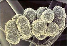 口腔微生物_牙龈卟啉单胞菌_360百科